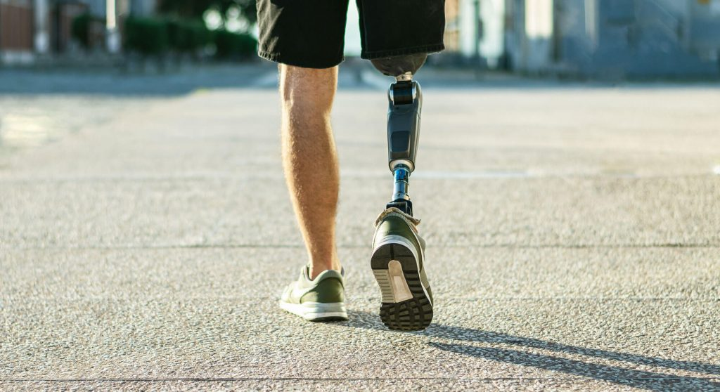 Leg amputee walking with a prosthetic