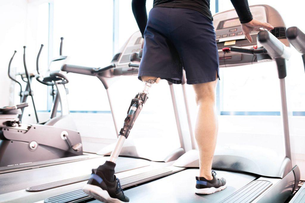Leg amputee walking on treadmill